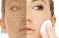 How to Get Rid Of Dry Skin On Face